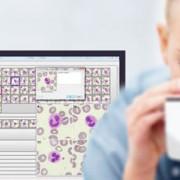 image-analysis-software-hematology-clemex-hemacyto